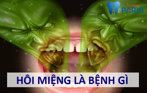 Hôi miệng là bệnh gì? Nguyên nhân & cách điều trị Dứt Điểm 100% 5