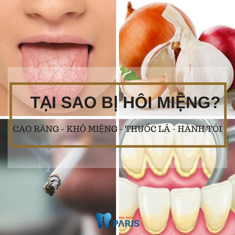 Hôi miệng là bệnh gì? Nguyên nhân & cách điều trị Dứt Điểm 100% 3