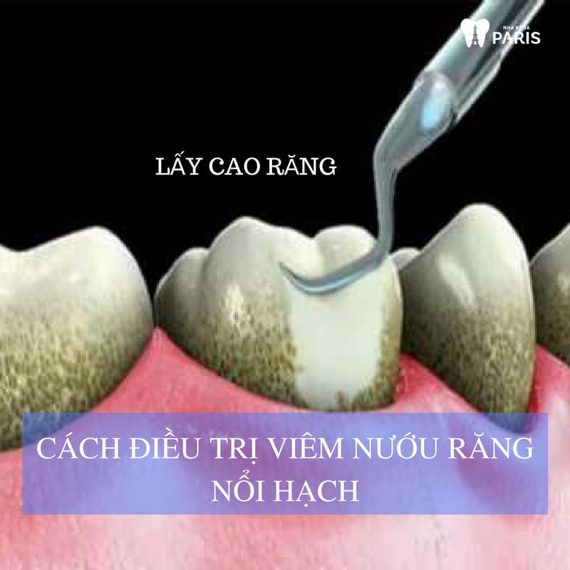 Viêm nướu răng nổi hạch - Tổng hợp những thông tin cần biết! 2