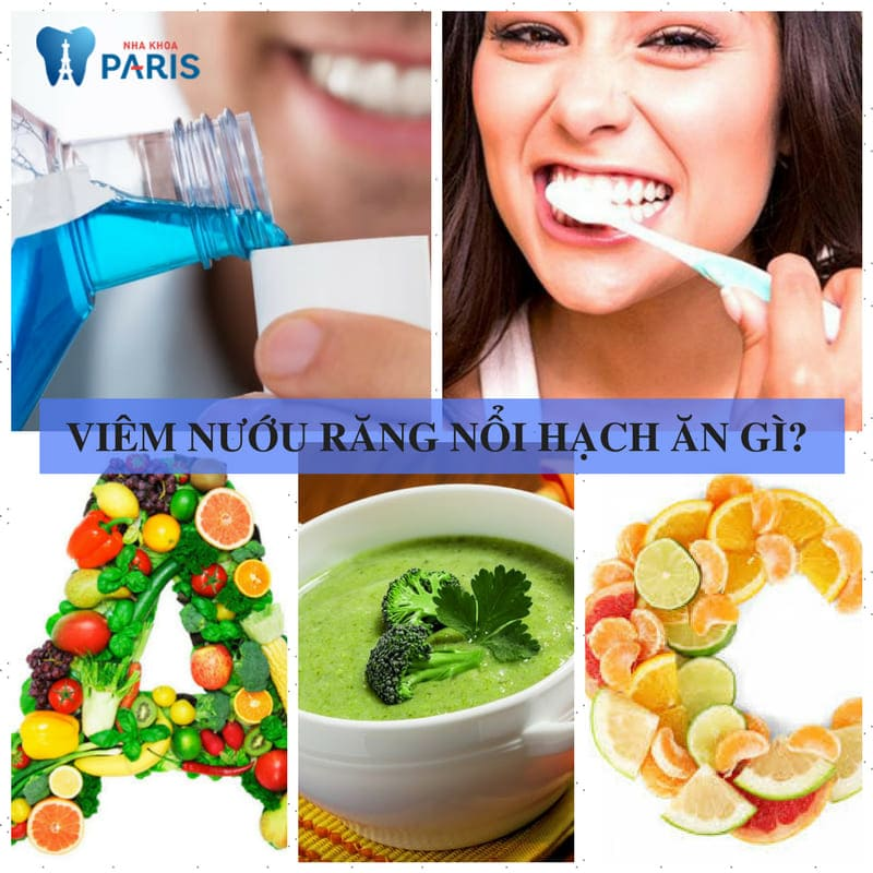 Viêm nướu răng nổi hạch - Tổng hợp những thông tin cần biết! 1