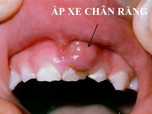 Viêm nướu răng nổi hạch - Tổng hợp những thông tin cần biết! 3