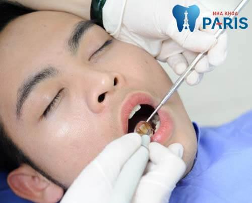 Máy siêu âm - Dụng cụ lấy cao răng hiện đại nhất ngày nay