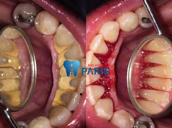 Lấy cao răng có đau không? Bật mí về quy trình lấy cao răng không đau 2