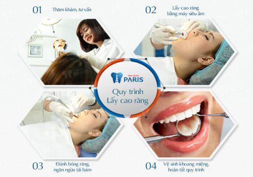Lấy cao răng có đau không? Bật mí về quy trình lấy cao răng không đau 1