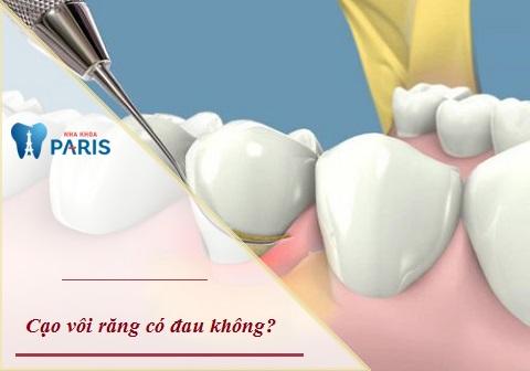 Cạo vôi răng có đau hay không sẽ phụ thuộc vào công nghệ và tay nghề của nha sĩ
