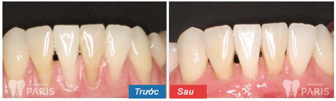 Mức độ nguy hiểm của hiện tượng bị tụt lợi chân răng