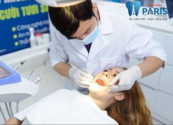 Hiện tượng bị tụt lợi chân răng - Nguyên nhân và cách điều trị triệt để 5