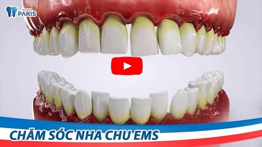 """Top 8 """"TUYỆT ĐỈNH BÀI THUỐC"""" điều trị bệnh viêm chân răng tại nhà 10"""