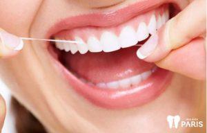 Cách trị hôi miệng vĩnh viễn - lấy cao răng