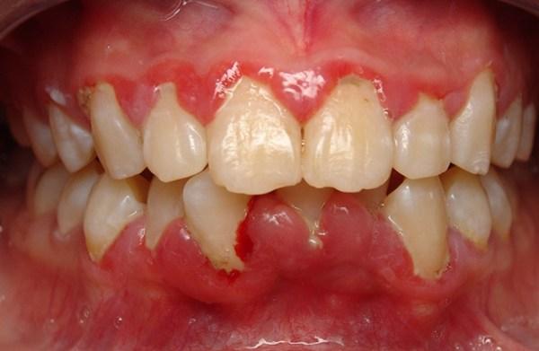 """Top 8 """"TUYỆT ĐỈNH BÀI THUỐC"""" điều trị bệnh viêm chân răng tại nhà 1"""