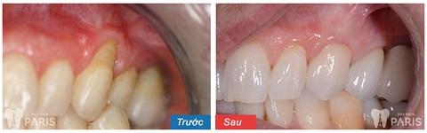 Răng tự nhiên, chắc khỏe sau khi cạo vôi răng