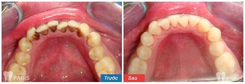 Răng sạch sẽ, sáng mịn là những gì có thể thấy sau khi can thiệp cạo vôi răng