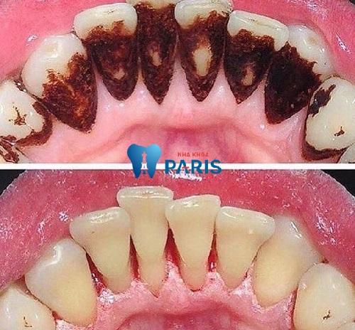 Viêm nướu răng nổi hạch - Nguyên nhân và cách điều trị TRIỆT ĐỂ nhất 2