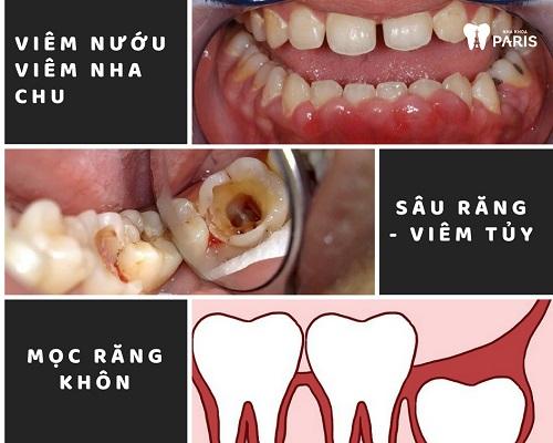 Viêm nướu răng nổi hạch - Nguyên nhân và cách điều trị TRIỆT ĐỂ nhất 4