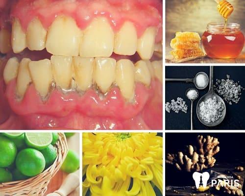 """Sự thật """"ÍT AI BIẾT"""" về cách chữa viêm chân răng bằng thuốc nam 2"""