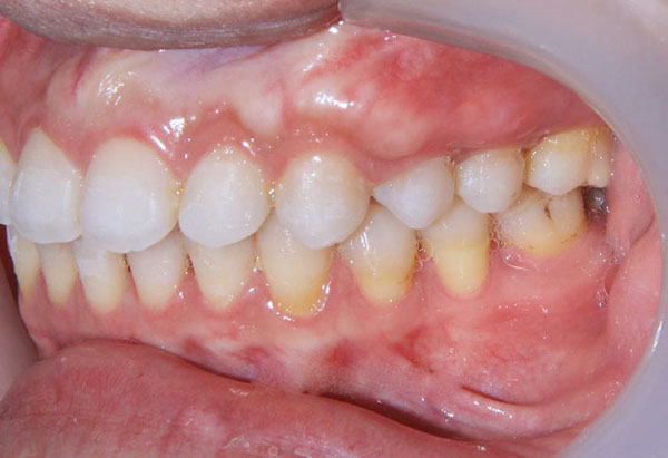 Nguyên nhân gây viêm chân răng hàm & Cách phòng ngừa 2
