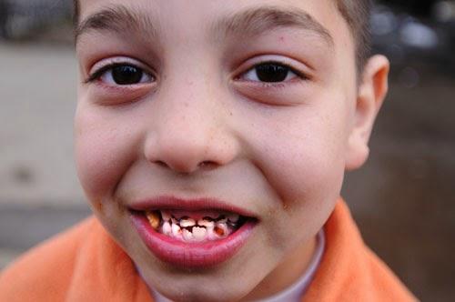 Có nên lấy cao răng cho trẻ không? - Chia sẻ chuyên sâu từ nha sĩ 2