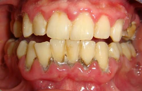 Có nên lấy cao răng cho trẻ không? - Chia sẻ chuyên sâu từ nha sĩ 3