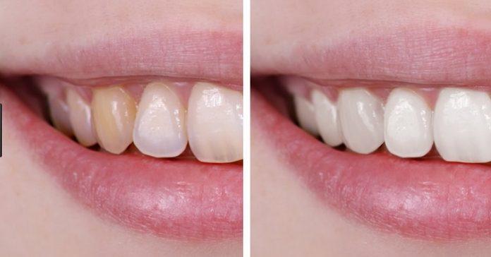 Cạo vôi răng có làm trắng răng, sáng bóng răng không thưa bác sĩ? 4
