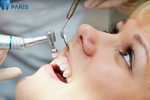 Lấy cao răng bằng máy siêu âm