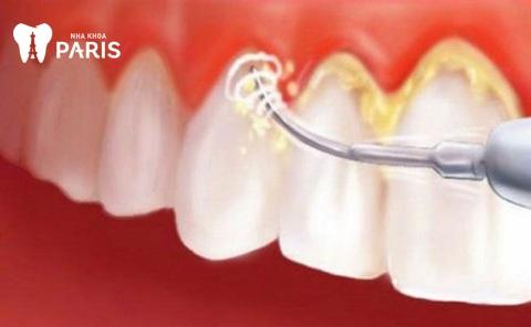 Lấy cao răng là phương pháp điều trị dứt điểm bệnh viêm lợi chảy máu