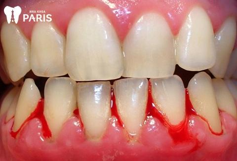 Viêm lợi chảy máu là bệnh lý răng miệng phổ biến do mảng bám trên răng gây ra