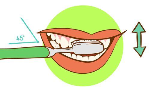 Cách khắc phục tình trạng chảy máu chân răng thường xuyên