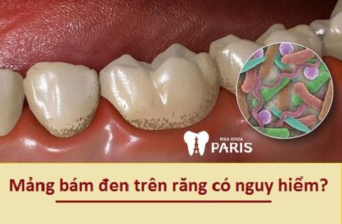 Răng bị mảng bám màu đen có nguy hiểm không?