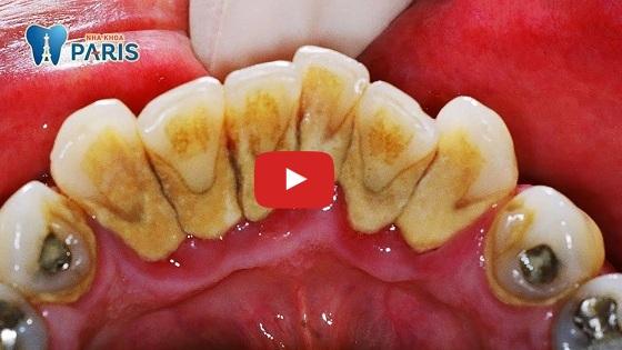 Răng bị mảng bám đen có nguy hiểm không?