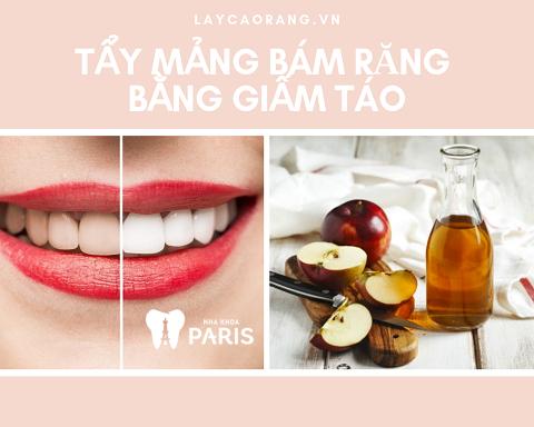 Tẩy mảng bám răng bằng giấm táo có hiệu quả không?