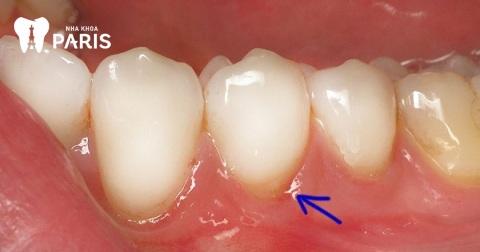 Viêm nướu răng hàm gây ảnh hưởng nhiều đến cuộc sống người bệnh