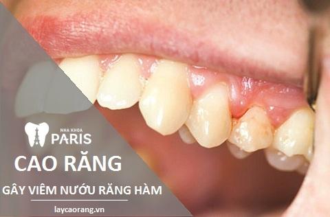 Viêm nướu răng hàm chủ yếu do cao răng gây ra