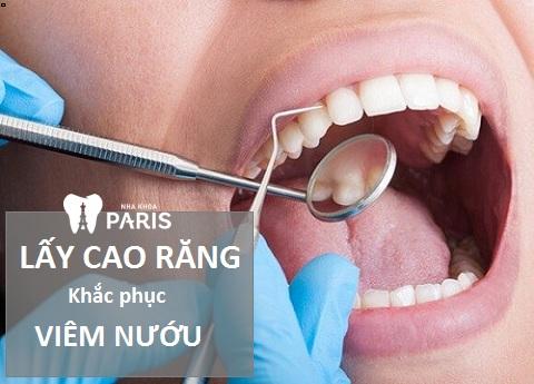 Lấy cao răng khắc phục dứt điểm tình trạng viêm nướu