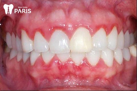 Viêm lợi là tình trạng mảng bám cao răng gây kích ứng dẫn đến sưng nướu