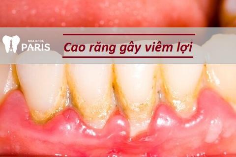 Cao răng là nguyên nhân chính gây viêm nướu