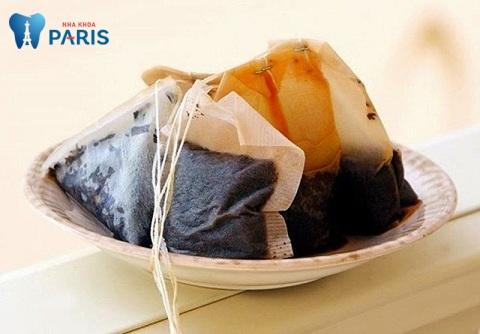 Đắp túi trà lên vùng bị viêm để giảm sưng và đau khi bị viêm nướu
