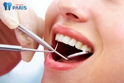 Lấy cao răng - Điều bạn cần làm để cải thiện tình trạng viêm lợi