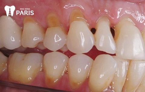 Chữa tụt lợi bao nhiêu tiền khi bị mòn chân răng