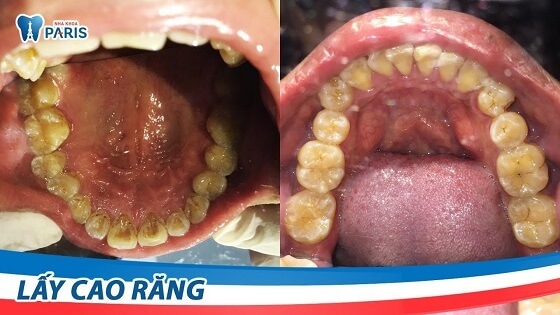 Lấy cao răng nhanh chóng bằng máy siêu âm hiện đại tại Nha khoa Paris